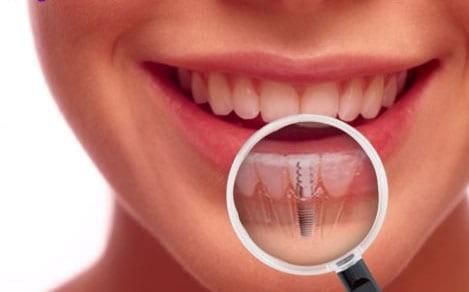 Zubni implantati – prednosti
